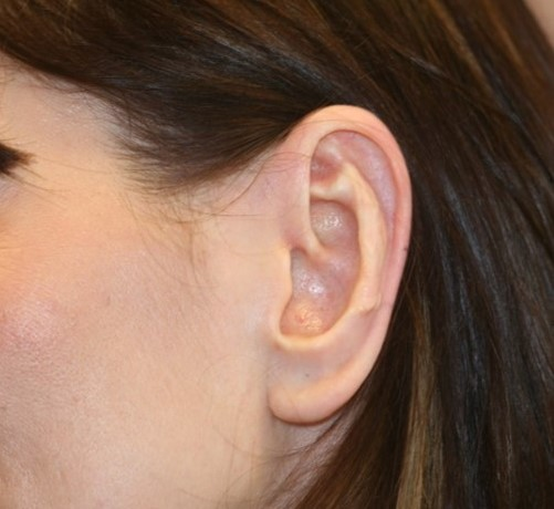 Ear_reduction_3a.jpg