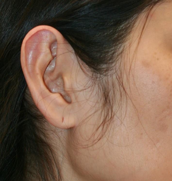 Ear_and_Earlobe_reduction_1a.jpg
