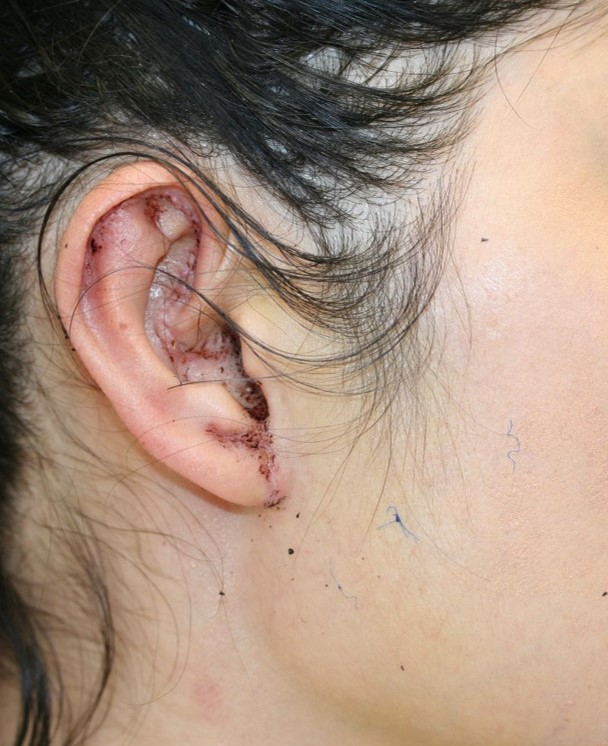 Ear_and_Earlobe_reduction_1b.jpg